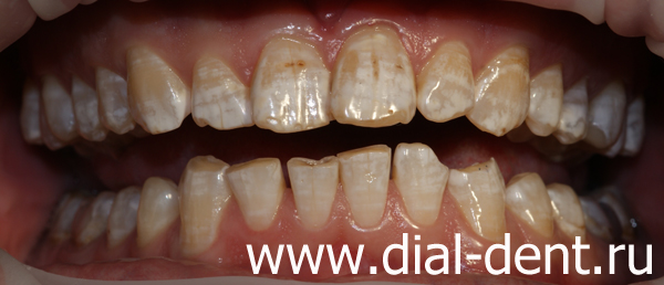 Отбеливание флюорозных зубов - Стоматологический