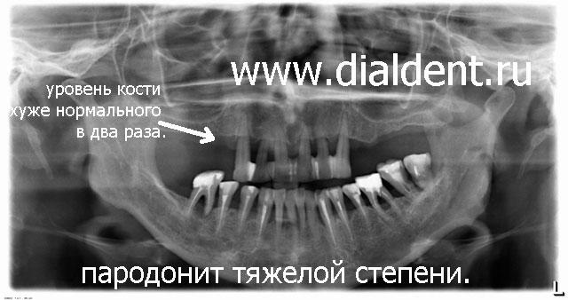 панорамного снимка зубов.