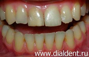 зубы перед винирами фото спиливание