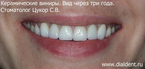 виниры на зубы стоимость в минске