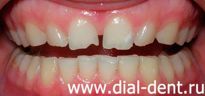 heydent гель для отбеливания зубов инструкция