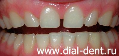 отбеливание зубов лазером doctor smile d5