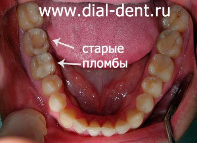 отбеливание зубов цена
