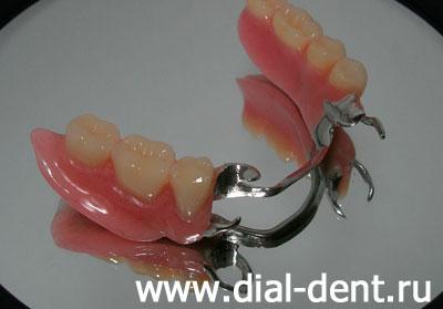 Что такое виниры для зубов стоимость отзывы