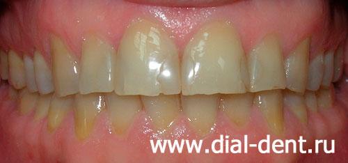 виниры на 2 передних зуба фото