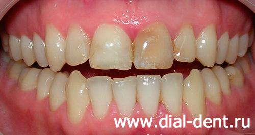 видеоуроки по стоматологии бесплатно
