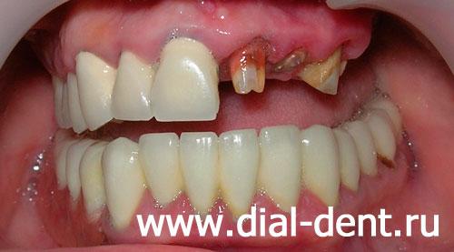 отбеливание зубов зуб ру