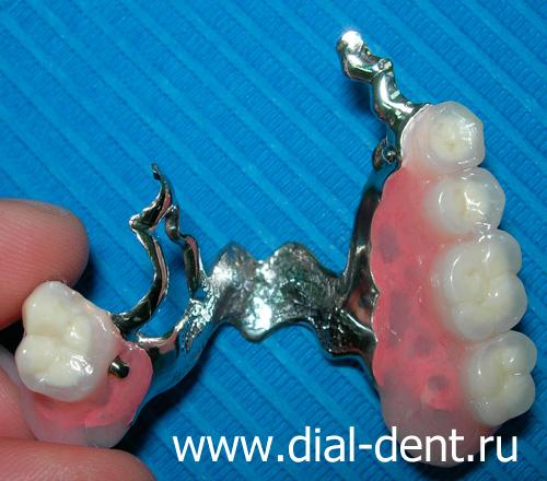 зубные протезы запах изо рта