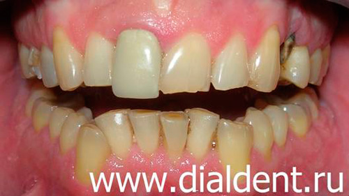 Имплантация зуба под наркозом