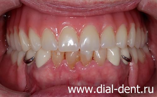 Протезирование зубов пластиночный протез