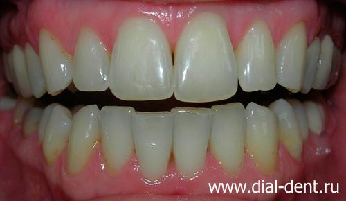 реставрация отбеливание зубов