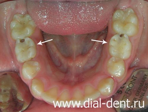 нужно ли удалять зуб?
