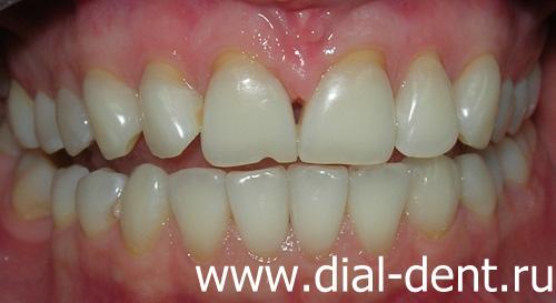 реставрация зуба виниром