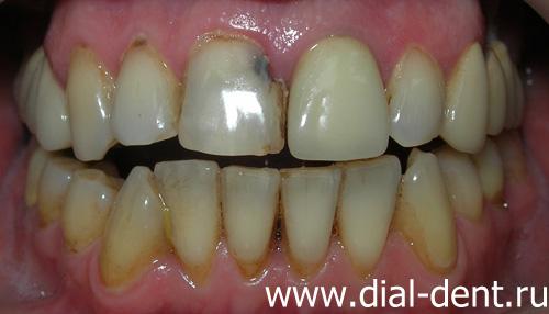 Дырки на зубах с внутренней стороны
