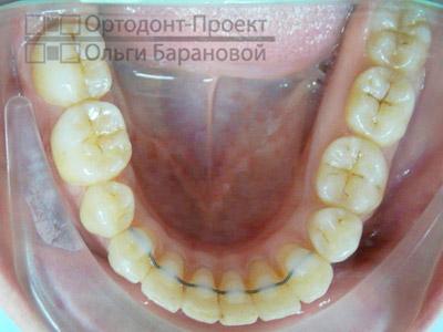 Верхнюю поверхность жевательных зубов который