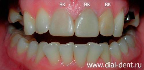 Временные коронки на зубы как установить