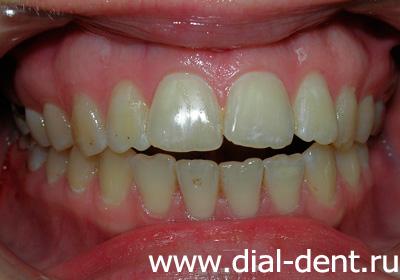 Отбелить зубы порошком жемчуга
