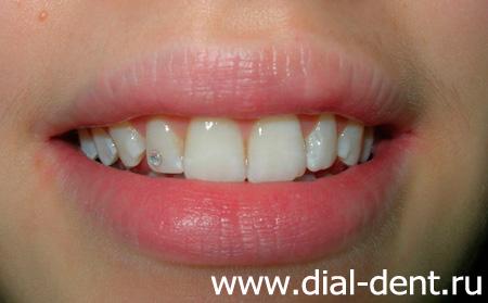 Зубные отбеливающие полоски отзывы