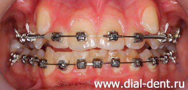Зубная щетка для зубов с брекетами