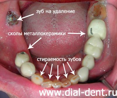 Тридцать третий зуб что это такое