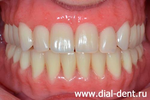запах изо рта после удаления зуба