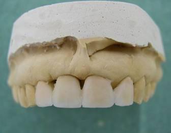 стоимость винира на 1 зуб под ключ