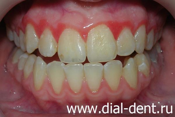 вкладки и виниры зубы