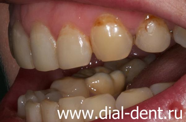 Аптека гель отбеливание зубов цена