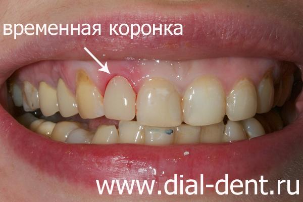 Нарисовать губы с зубами карандашом поэтапно