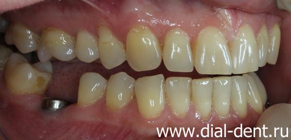 Гарантия на коронки для зубов
