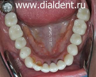 зубные виниры на нижние зубы