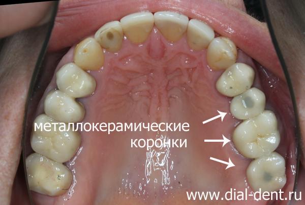 Удаление зубов и