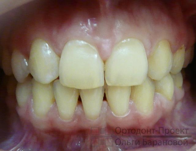 отбеливание зубов москва zoom