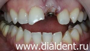 Сломан передний зуб восстановление