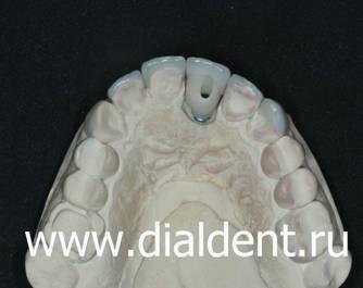 винир на передний зуб стоимость в москве
