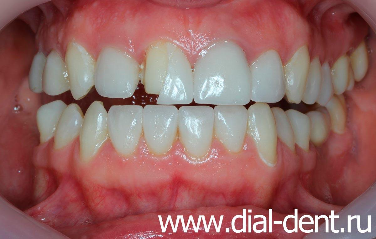 можно ставить виниры на кривые зубы