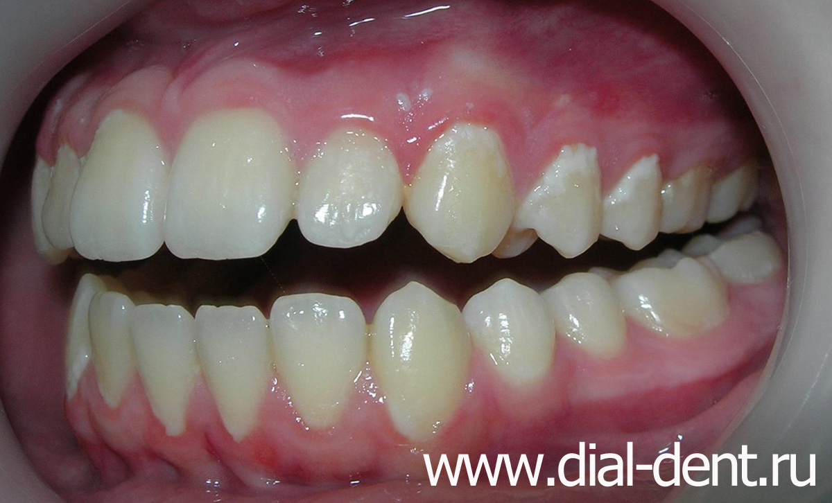 Удаление налета эмали на зубах