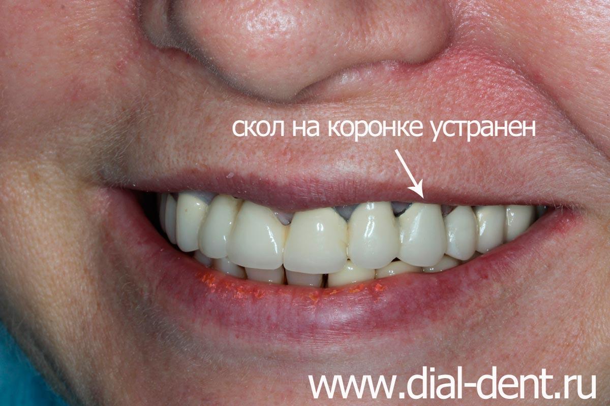 отбеливание зубов год