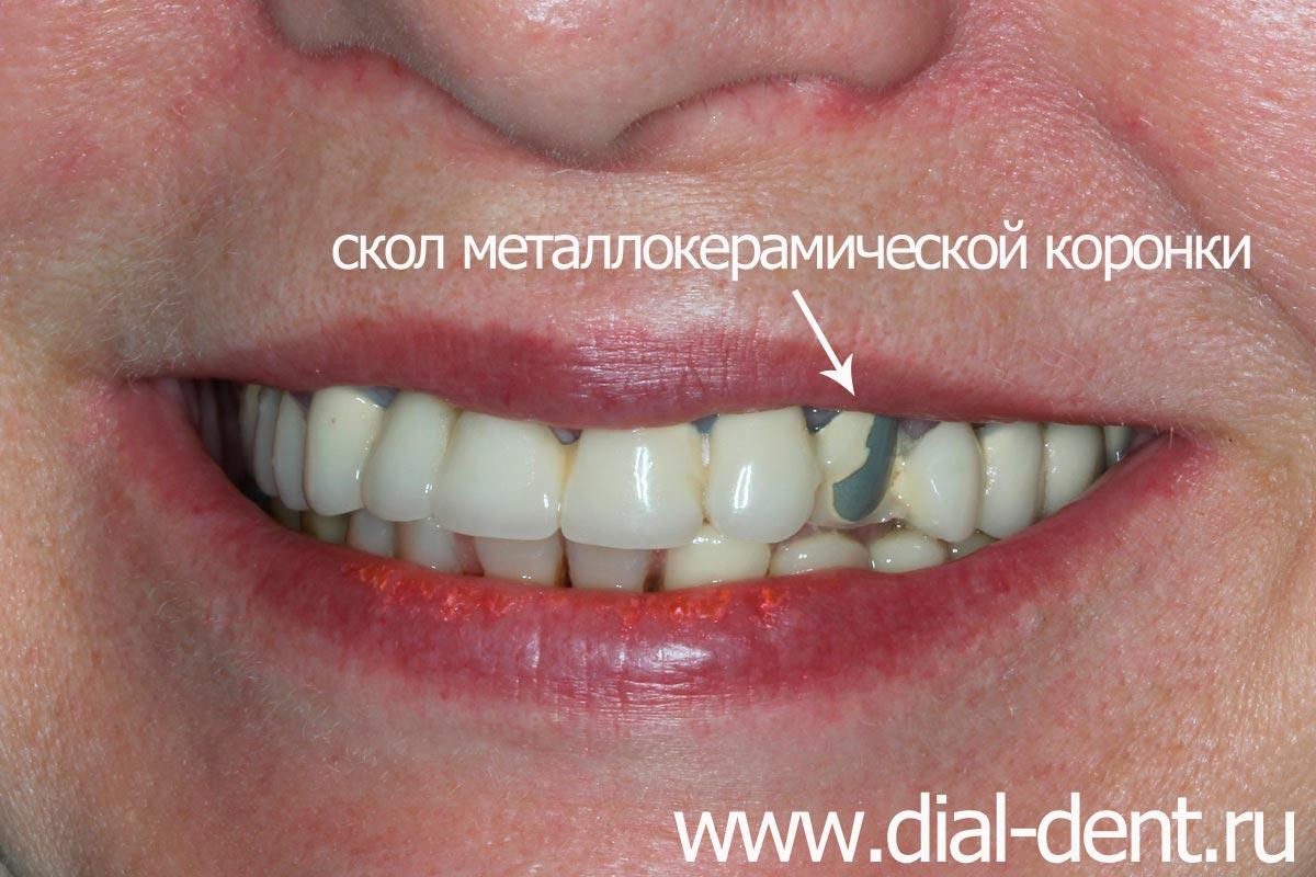 Медицинское отбеливание зубов цена