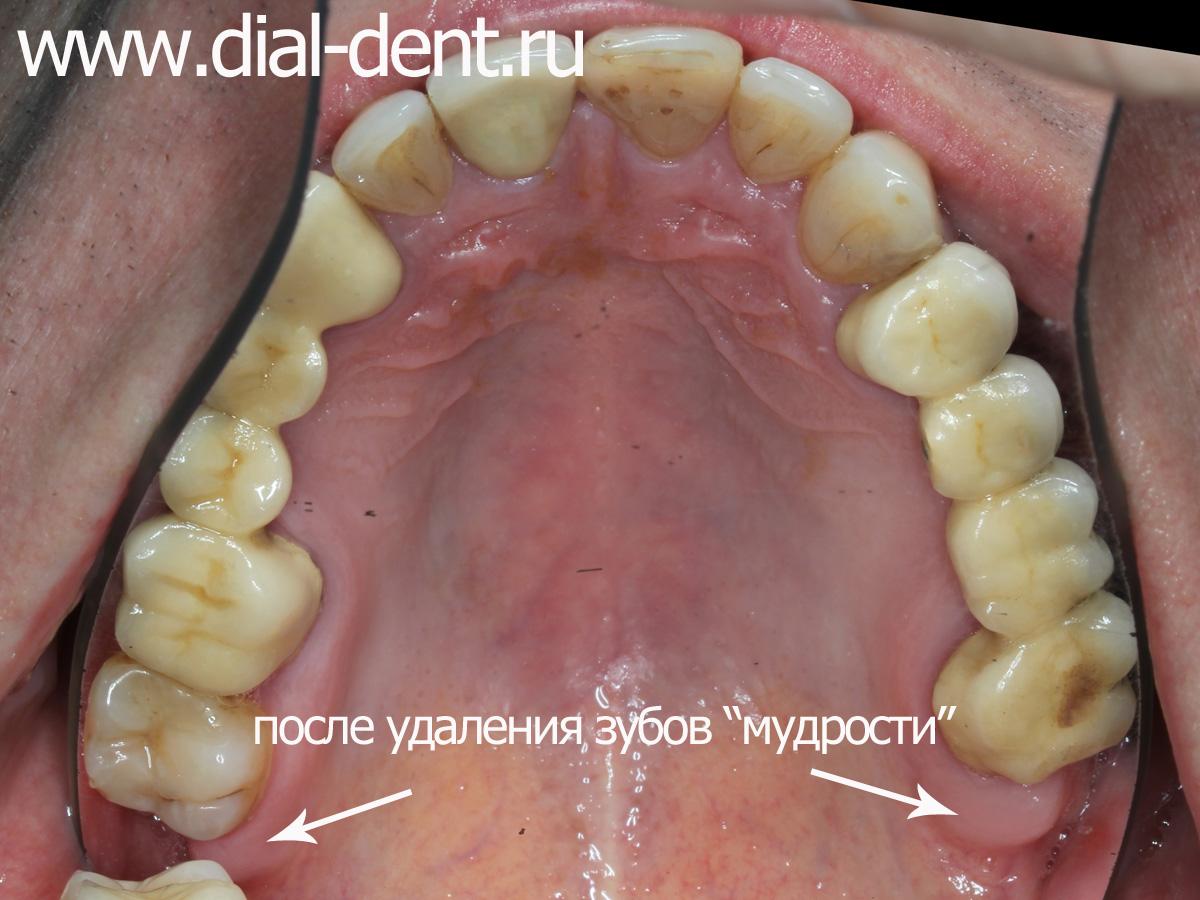 виниры на зубы в моршанске отзывы