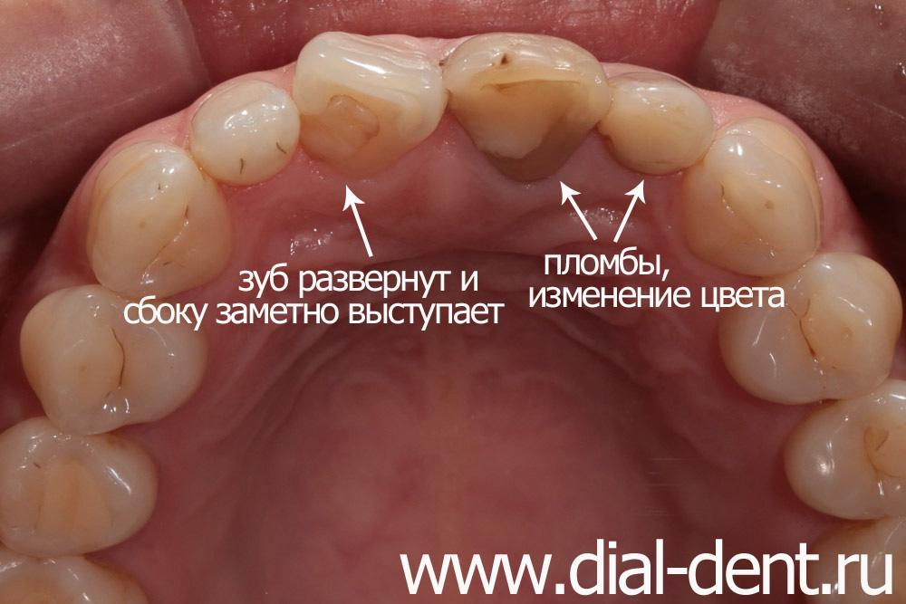 Пломбирование переднего зуба фото