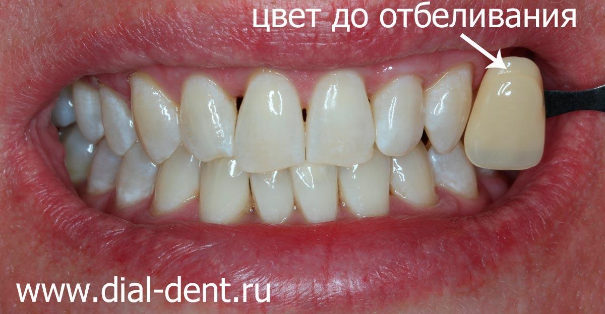 Можно ли отбеливать зубы углём