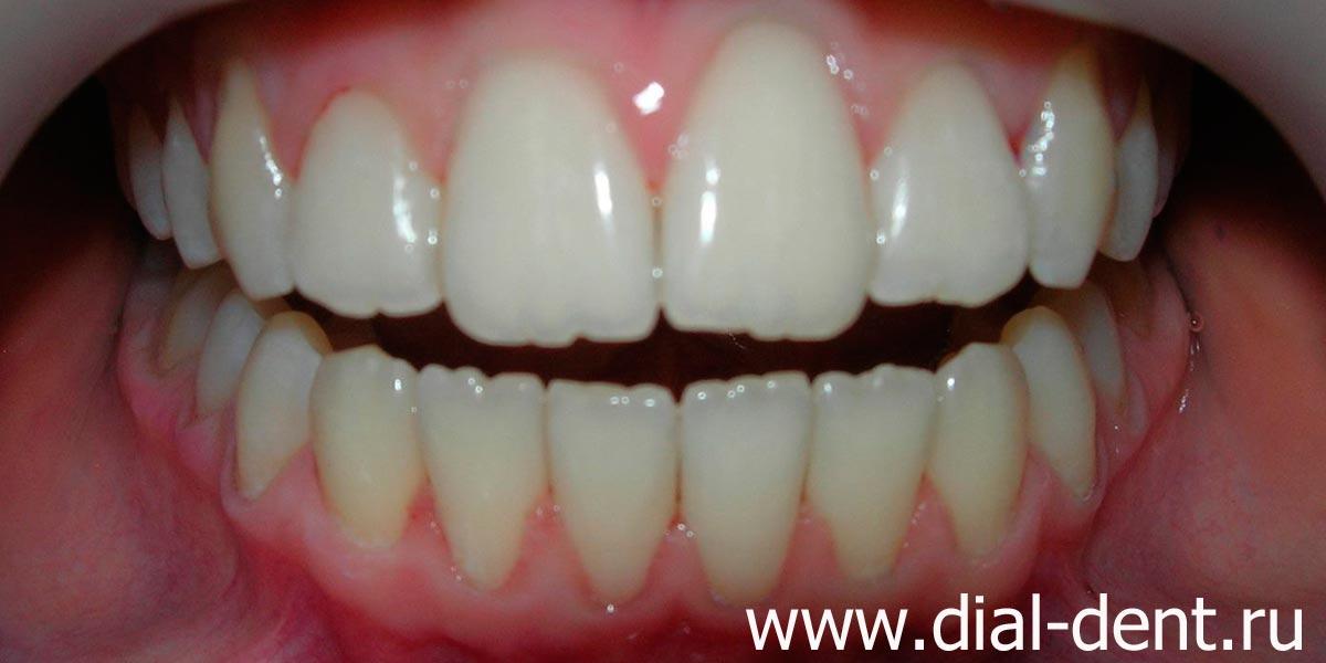 После профессиональной чистки зубов болит зуб