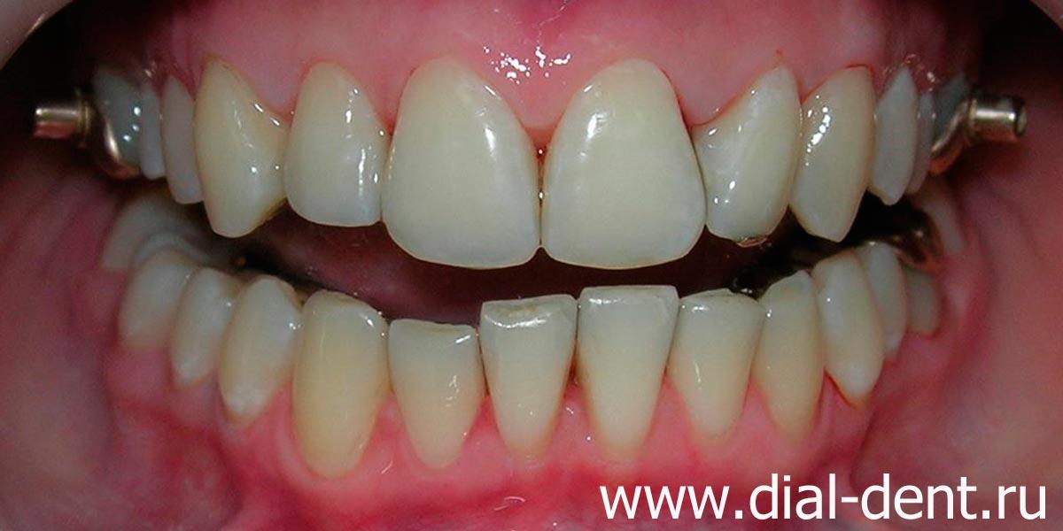 Черный зубной камень
