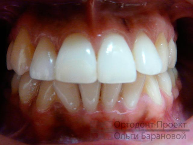 Все о сепарации зубов