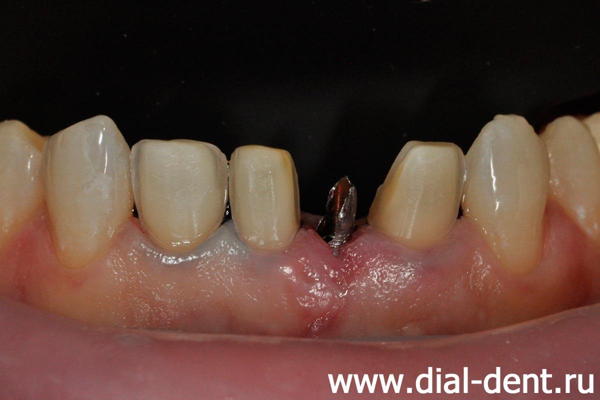 спиленные зубы под виниры