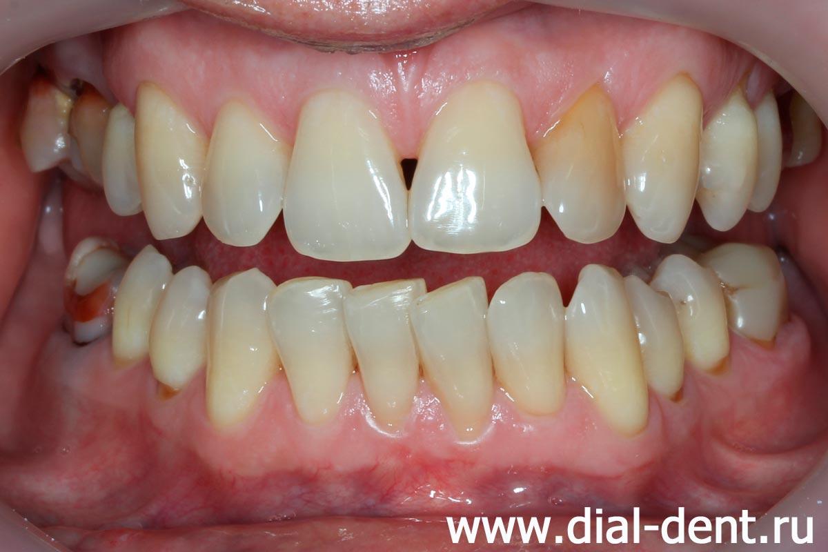 отбеливание зубов zoom 3 скидки