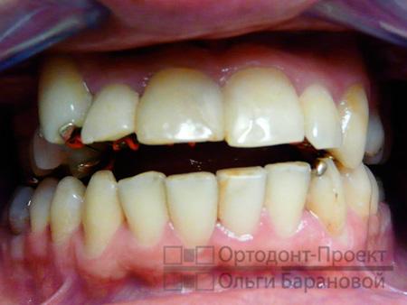 Проблемы при лечении зубов