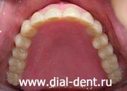 онлайн решения протезы зубов америка виниры